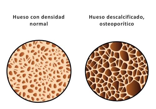 osteoporosis-in-mubu
